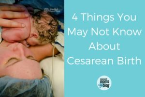 4 Things You May Not Know About Cesarean Birth (1)