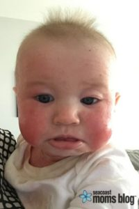 Baby Eczema I Think It Might Be The Death Of Me