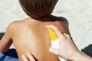 safe sunburn soothers